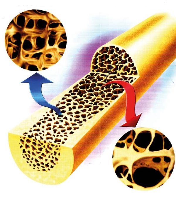 Vitamin K2 steuer die Kalziumablagerung im Knochen.